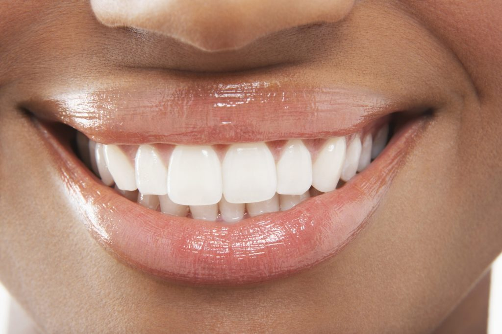 Dental Whitening Products