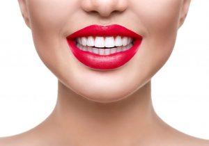 Teeth Whitening Care - Make your whites last longer