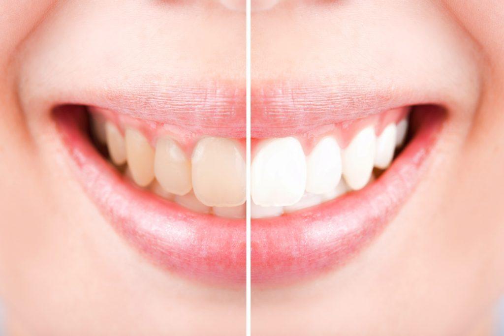 Permanent Teeth Whitening