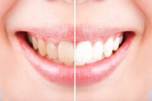 Permanent Teeth Whitening