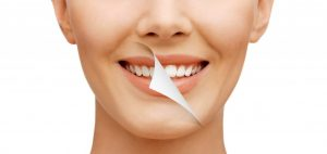 teeth stain removal with simple everyday habits