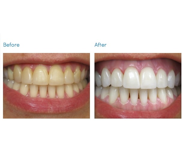 Teeth whitening kit before and after review picture