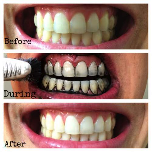 Whiten your Teeth with Activated Charcoal before & after