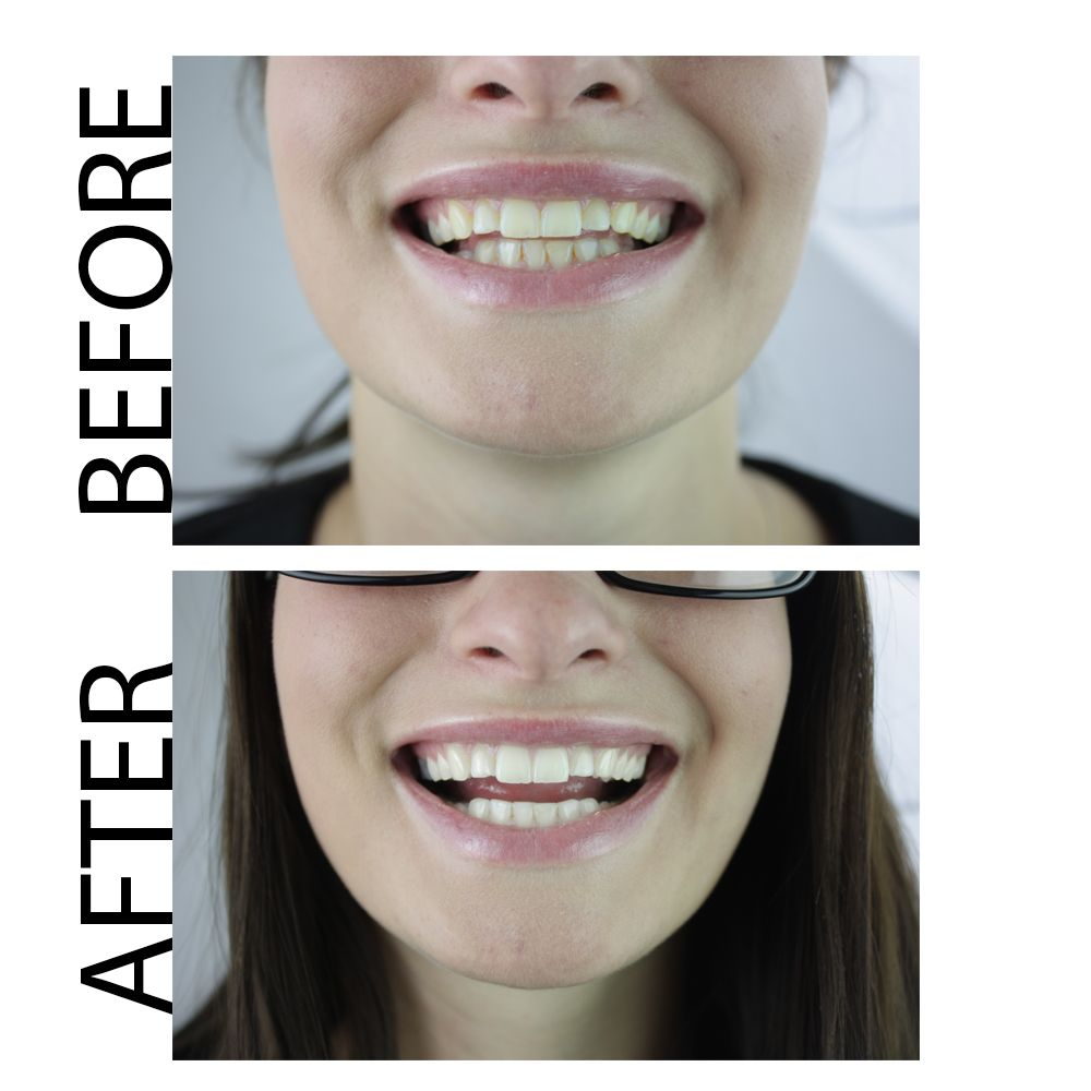 natural teeth whitening toothpaste before and after