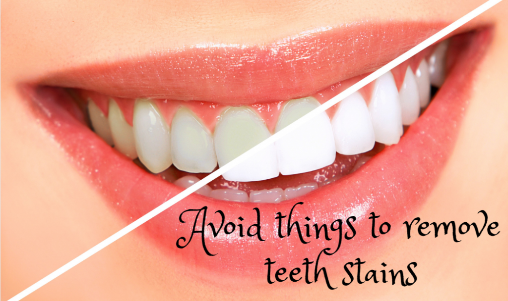 Avoid Things to Remove Teeth Stains