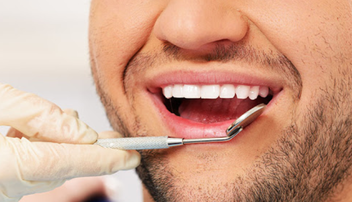 Natural teeth-whitening